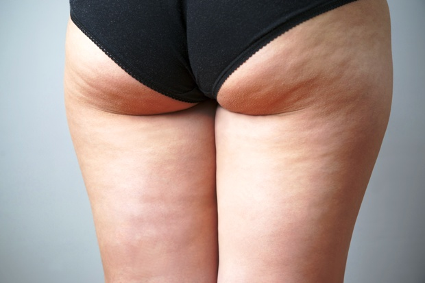 cellulite behandeln